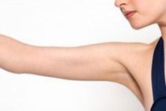 cirurgia-plastica-dos-bracos-3