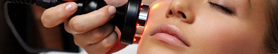 Remoção de Manchas Laser